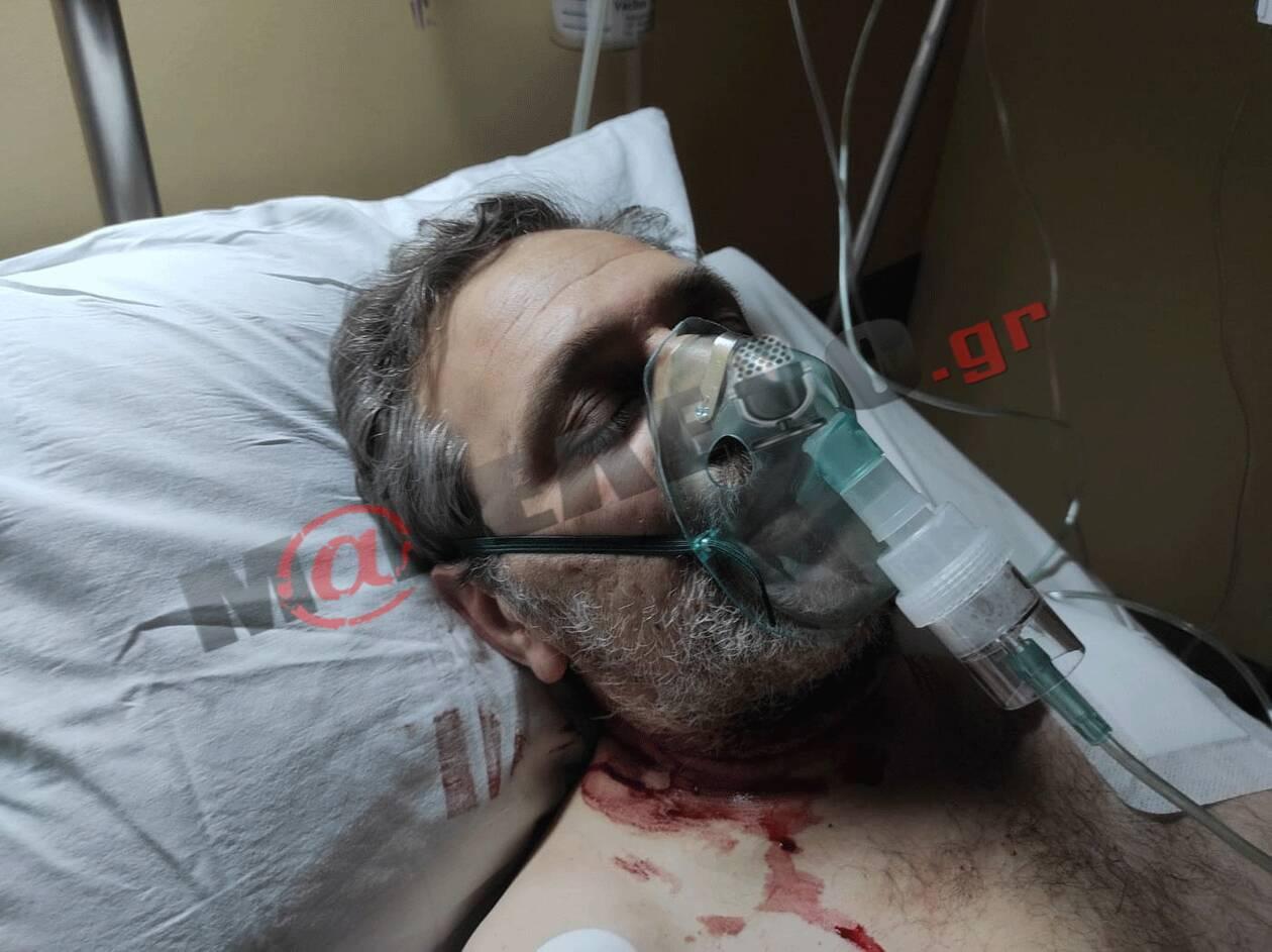 Ενέδρα θανάτου κατά του Στέφανου Χίου – Εικόνες από το νοσοκομείο
