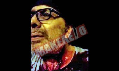 Ενέδρα θανάτου κατά του Στέφανου Χίου - Εικόνες από το νοσοκομείο 6