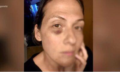 Η πρώην σύζυγος του Κώστα Δόξα τον καταγγέλλει για ξυλοδαρμό (video)